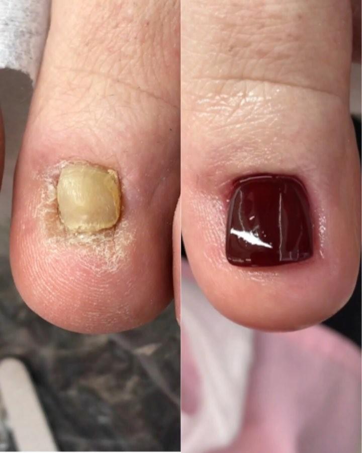 Broken Nails Transformation Pedicure Tutorials - K4 Fashion